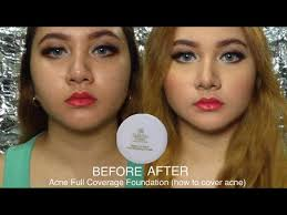 Bedak Tabur Wardah Anti Acne sariayu bedak jerawat review dan demo acne coverage foundation