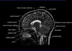 Neck Cross Sectional Anatomy Cranial Nerves Anatomy Mri Axial Cranial Nerves Anatomy Free