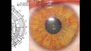 iridology 101 what does it if you orange brown color in