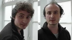 Frisuren Lange Haare Geheimratsecken by Geheimratsecken Und Glatze Kaschieren Ein Kunde Zeigt Euch Seine