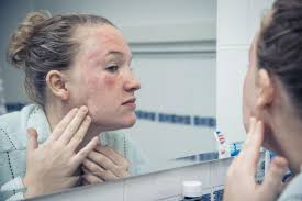 sun poisoning symptoms treatment and prevention