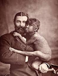 early young male pubic hair growth pictures hypertrichosis wikipedia