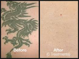 laser tattoo removal asheville and wilmington nc ideal image