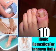 best 25 ingrown nail ideas on pinterest toenail pain ingrown