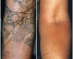 laser tattoo removal perth dr ehsan jadoon