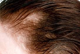 womans hair thinning on sides hair loss causes treatments and prevention