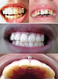 auskarai i nosi keisčiausios modifikacijos arba ką galima padaryti savo lūpoms
