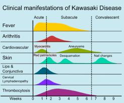 Signs And Symptoms Of Blindness Kawasaki Disease Wikipedia