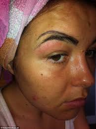 eyebrow feather tattoo uk woman looks like a clown after botched eyebrow tattoo fillers