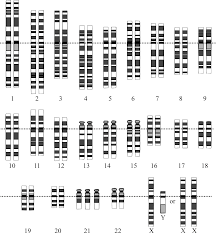 How Many Chromosomes Does A Somatic Cell Have Aneuploidy Wikipedia