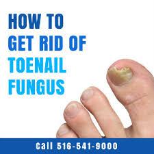how to get rid of toenail fungus massapequa podiatry associates