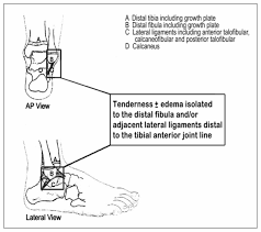 Anterior Fibular Ligament Effect Of The Low Risk Ankle Rule On The Frequency Of Radiography