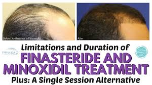 rogaine for women success stories the lifelong duration of finasteride and minoxidil hair loss