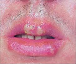 Challenge Gets Herpes Herpes Labialis Treatments And Home Remedies Herpes Labialis