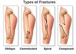 Knee Bony Anatomy 5 Primary Bone Cancer Symptoms You Should Know