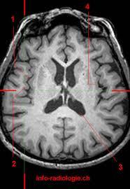 Sagittal Brain Mri Anatomy Lateral Sulcus Sylvian Fissure