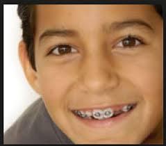 Comfort Dental Orthodontics Bakersfield Ca 33 Best Braces In Mesa Az Images On Pinterest Orthodontics