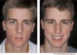 Light Therapy For Skin Acne Control Therapy For Teens Aesthetics In Northborough