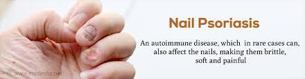 nail psoriasis causes symptoms diagnosis treatment u0026 prevention