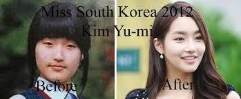 Asian Family Plastic Surgery Meme - korean family plastic surgery meme the best plastic 2017