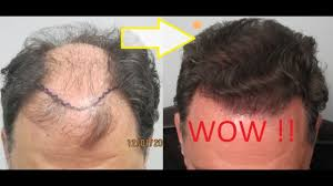 how thick is 1000 hair graft hair transplant results in los angeles hair restoration in los