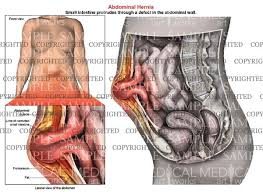 Female Anatomy Image Abdominal Hernia Anatomy Of Female U2014 Medical Art Works