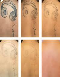 tattoo removal services the untattoo parlor portland or