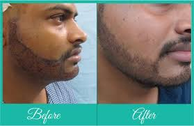 how thick is 1000 hair graft beard transplant pune beard hair transplant facial hair