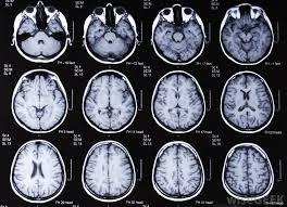 what is the difference between an mri with and without contrast
