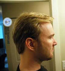can you color hair after brain surgery want to see an amazing hair transplant result