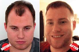 hair transplant america tom brady inspired my hair transplant new york post