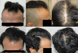 Stem Cells Hair Loss Stop And Regrow The Best Hair Growth Product
