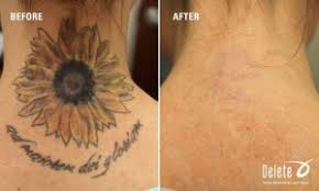 does tattoo removal hurt delete tattoo removal u0026 laser salon