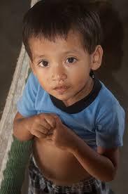 Challenge Kid Gets Herpes 167 Best Viral Disease Remedies Images On Herpes