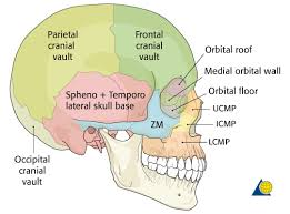Floor Of The Cranium Midface Additional Material Ao Surgery Reference