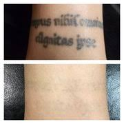premium tattoo removal tattoo removal 3033 chimney rock rd