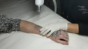 samsara laser clinic tattoo removal 3 youtube
