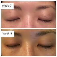 fysiko eyelash growth serum reviews photos makeupalley