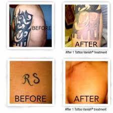 tattoo vanish near me ta tattoo vanish closed tattoo removal 14902 n florida ave