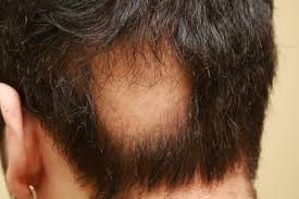 Hair Loss Cure For Women The Causes Of Traction Alopecia Fue Hair Transplant Clinics