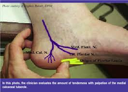 Planters Fasciitis Surgery by Keys To Detecting And Treating Entrapment Neuropathies Podiatry