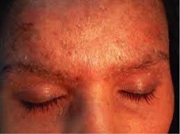 dermite du si e dermatite seborroica clinica e gestione paziente