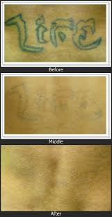 does tattoo removal cream work to erase unwanted tattoos tattoo