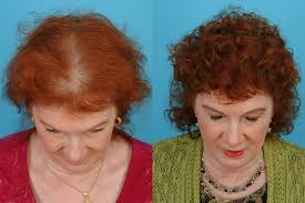 in my 60s hair is thin menopause taboos thinning hair painful sex and what you can do