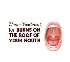 Home Remedies For Small Burns - home treatment for burns on the roof of your mouth