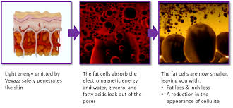 How Does Light Therapy Work Led Light Therapy What Is Vitality Body Sculpting