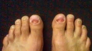 steve in a speedo gross the sexy feet of pro triathletes