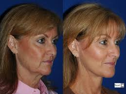 hairstyles that cover face lift scars biltmore lift mini lift facelift biltmore plastic surgery