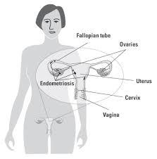 endometriosis womenshealth gov