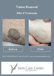 tattoo removal before u0026 after pictures lima auglaize county oh